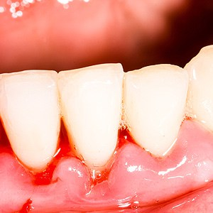Pay Attention to Gum Disease Warning Signs for an Early ...